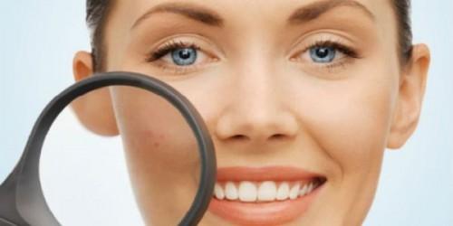 Foto 10 Cara Ini Akan Menghilangkan Flek Wajah Secara Mudah dan Alami!