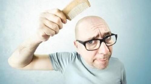 Foto 5 Manfaat Penting Pria Memiliki Kepala Botak